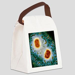 Molluscum contagiosum virus, TEM Canvas Lunch Bag