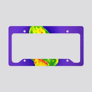 Obese woman, thermogram License Plate Holder