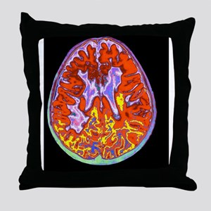 Multiple sclerosis brain, MRI scan Throw Pillow