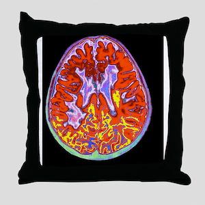 Multiple sclerosis brain, MRI scan Throw Pillow