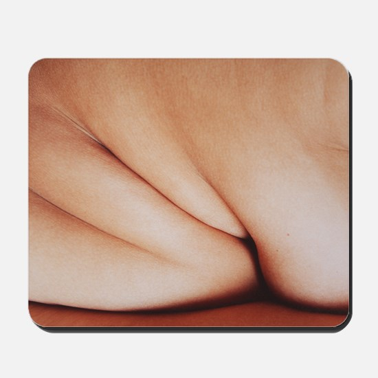 Obesity Mousepad
