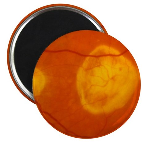 Ophthalmoscopy of disciform macula degenera Magnet