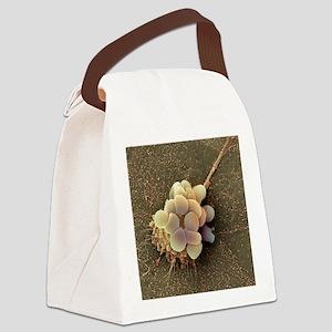 Ovarian cancer cell, SEM Canvas Lunch Bag