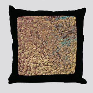 Ovarian cyst, SEM Throw Pillow
