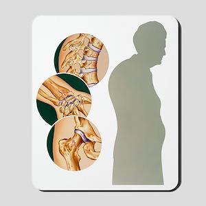 Osteoporosis Mousepad