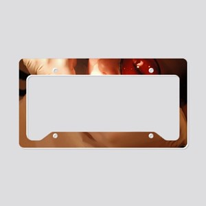 Orthodontic brace fitting License Plate Holder