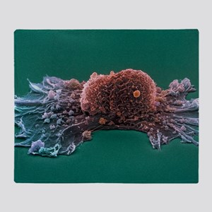 Ovarian cancer cell, SEM Throw Blanket