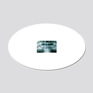 m7820167 20x12 Oval Wall Decal