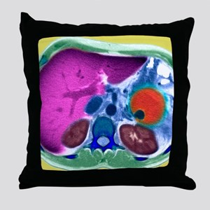 Pancreatitis, CT scan Throw Pillow