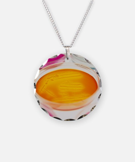 Petri dishes containing bact Necklace