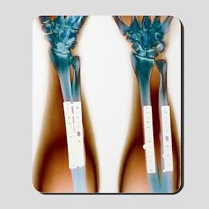 Pinned broken arm, X-ray (2 views) Mousepad
