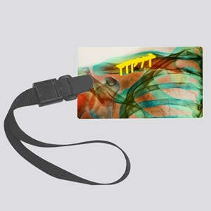Pinned collar bone fracture, X-r Large Luggage Tag