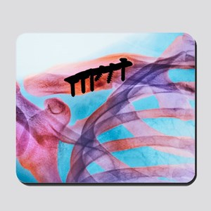 Pinned collar bone fracture, X-ray Mousepad
