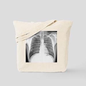 Pneumothorax, X-ray Tote Bag