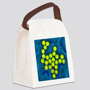 Polio viruses, TEM Canvas Lunch Bag