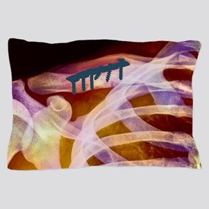 Pinned collar bone fracture, X-ray Pillow Case
