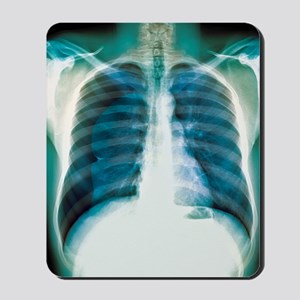 Pneumothorax, X-ray Mousepad