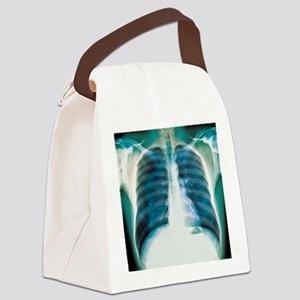 Pneumothorax, X-ray Canvas Lunch Bag