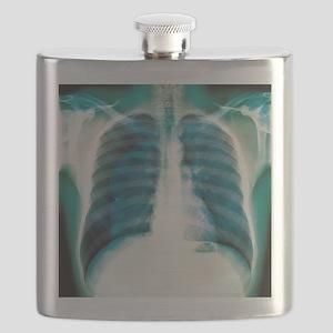 Pneumothorax, X-ray Flask