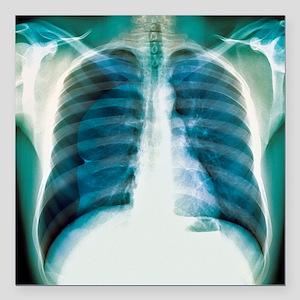 "Pneumothorax, X-ray Square Car Magnet 3"" x 3"""