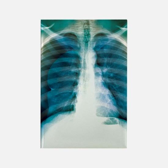 Pneumothorax, X-ray Rectangle Magnet