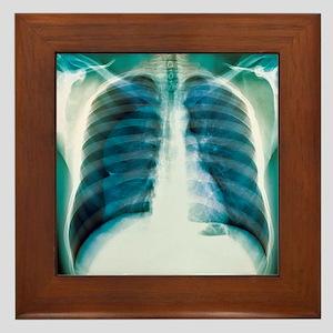 Pneumothorax, X-ray Framed Tile