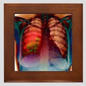 Pneumonia, X-ray Framed Tile