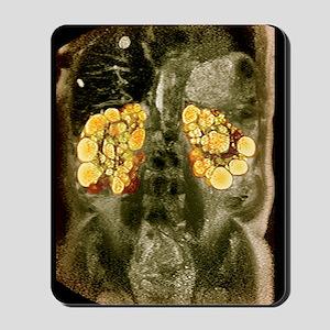 Polycystic kidneys, MRI scan Mousepad
