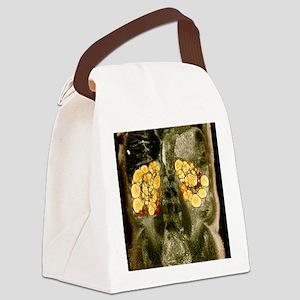 Polycystic kidneys, MRI scan Canvas Lunch Bag