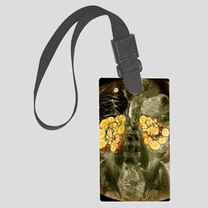 Polycystic kidneys, MRI scan Large Luggage Tag