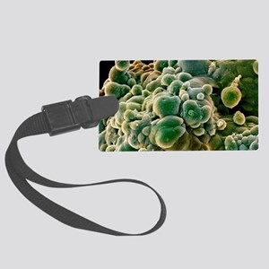 Prostate cancer cells, SEM Large Luggage Tag