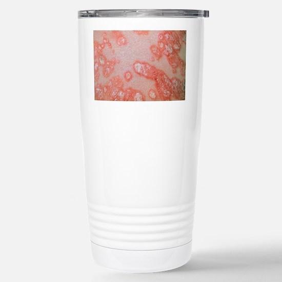 Psoriasis (plaque type) Stainless Steel Travel Mug