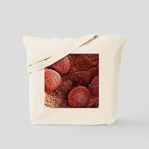 Prostate cancer, SEM Tote Bag