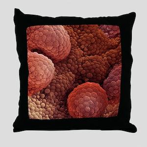Prostate cancer, SEM Throw Pillow