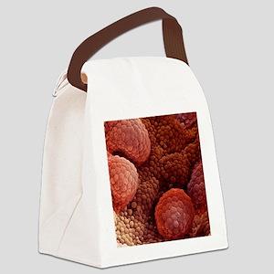 Prostate cancer, SEM Canvas Lunch Bag