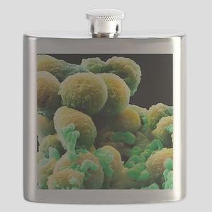 Prostate cancer cells, SEM Flask