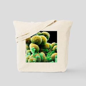 Prostate cancer cells, SEM Tote Bag