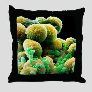 Prostate cancer cells, SEM Throw Pillow