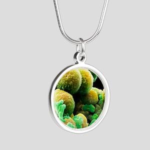 Prostate cancer cells, SEM Silver Round Necklace