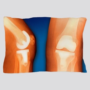 Prosthetic knee joint, coloured X-ray Pillow Case