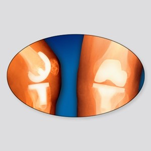 Prosthetic knee joint, coloured X-r Sticker (Oval)