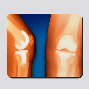 Prosthetic knee joint, coloured X-ray Mousepad