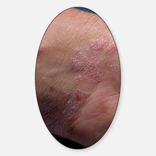 Psoriasis Sticker (Oval)