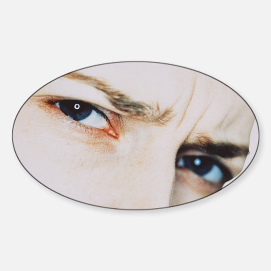Puzzled woman Sticker (Oval)