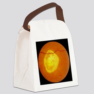 Retinal degeneration Canvas Lunch Bag