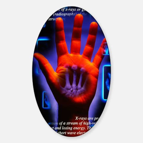 Radiography Sticker (Oval)
