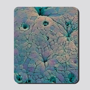 Rectal polyp Mousepad