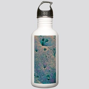 Rectal polyp Stainless Water Bottle 1.0L