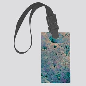 Rectal polyp Large Luggage Tag