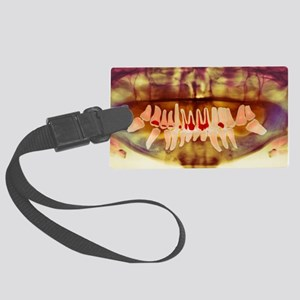 Root-canal treatment, dental X-r Large Luggage Tag